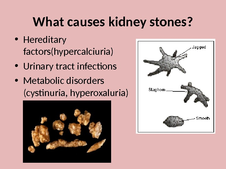 causes of kidney stones