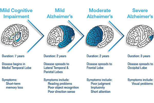 Alzheimers Disease Stages with picture