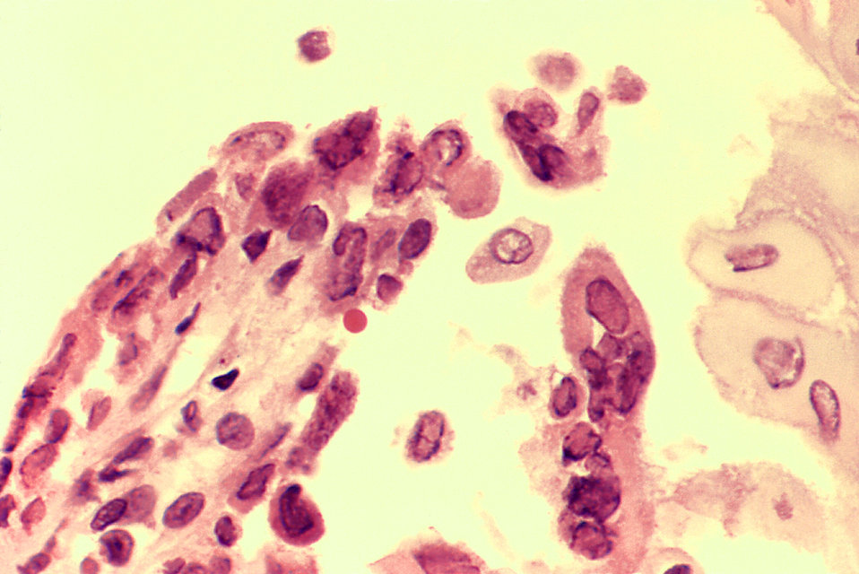 Herpes types, causes, treatments