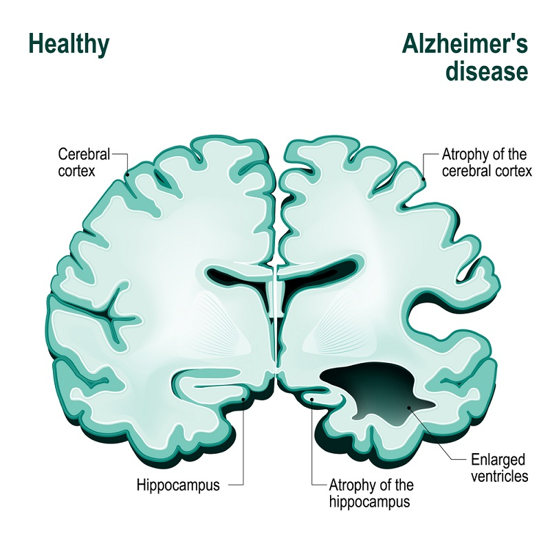 healthy and Alzheimer disease