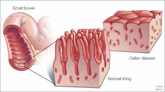 Malabsorption Syndrome, intestine