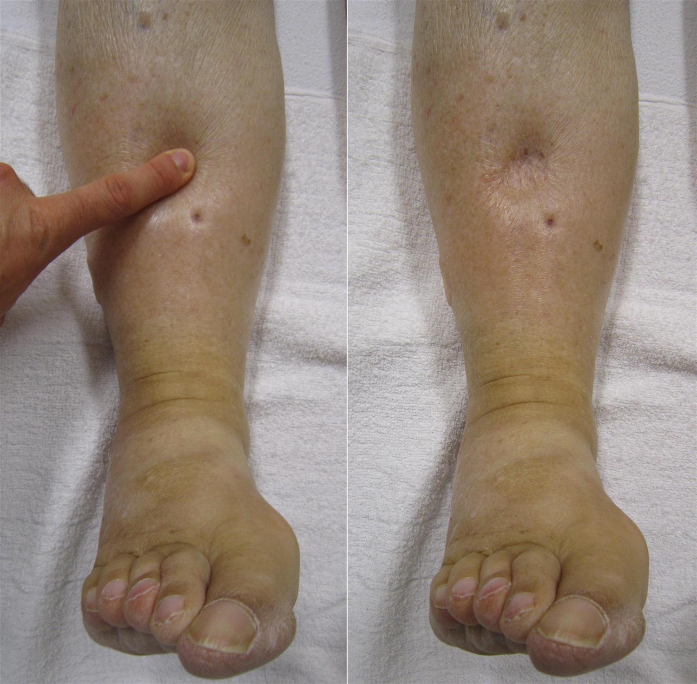 Malabsorption Syndrome, symptoms